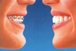 diagram of a side by side comparision of braces and Invisalign
