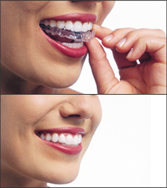 image of Invisalign clear aligners being put into a woman's mouth