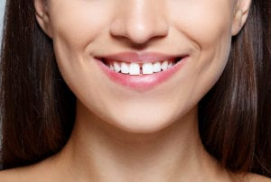 woman smiling with a gap between front teeth