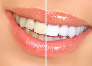 side by side of teeth that are whitened