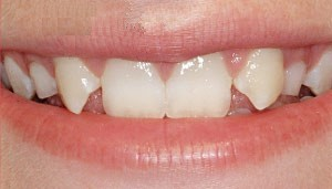 image of an incisor out of position