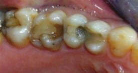 white fillings that need to be replaced