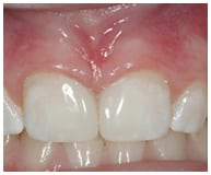 gap in teeth repaired by dental bonding