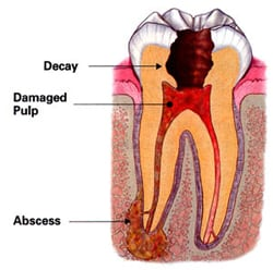 Root canal diagram and terminology