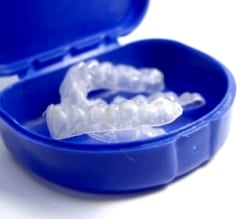 These mouthguards are custom-made for your at home teeth whitening gel application.