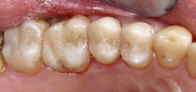 white fillings after restoration