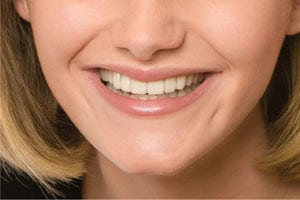 york snap-on smile after