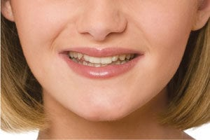 photo of york snap-on smile before